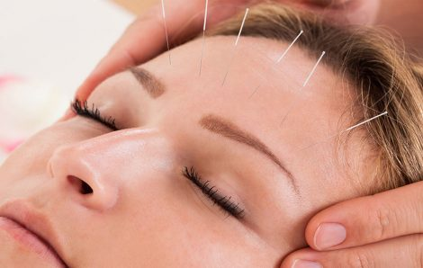 Acupuncture: An Alternative Approach to Infertility